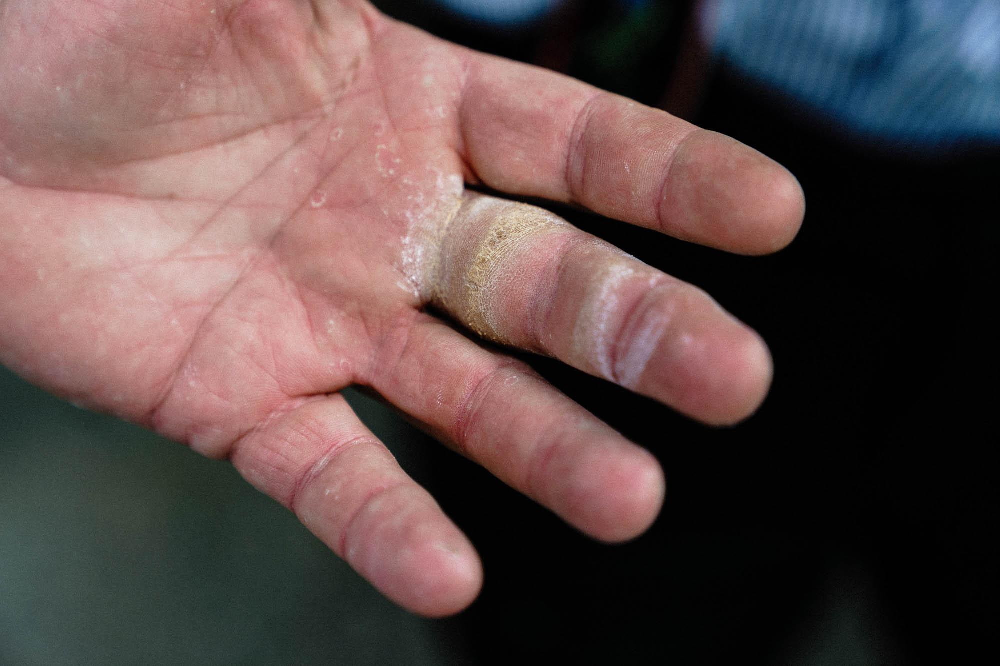 Die Hand eines Fingerhaklers mit dicker Hornhaut am Mittelfinger